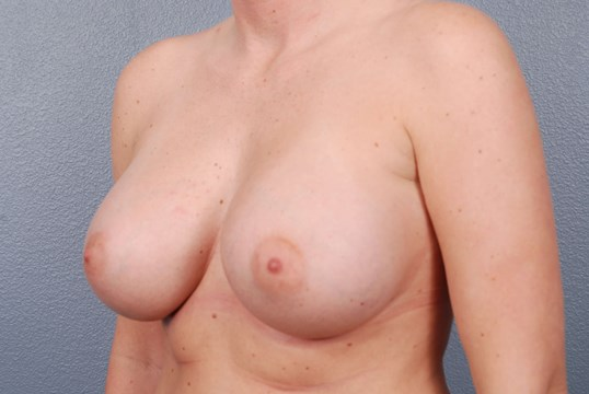 Saline Breast Augmentation OKC After